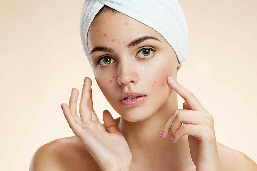 [:it]miloon guida acne 4 blog[:]